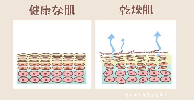 健康肌と乾燥肌