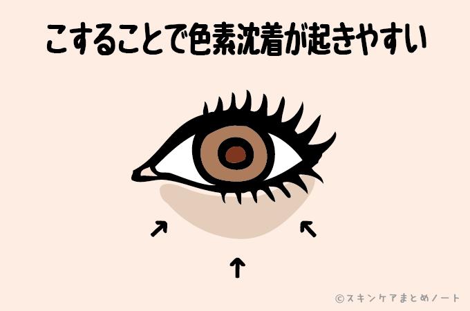 メイク落としシートによる目の下のシミ(色素沈着)のイラスト