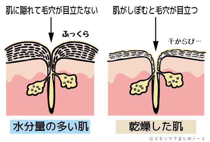 乾燥によって毛穴の開きが起きる図