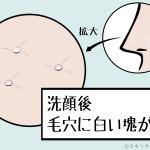 洗顔後に鼻の毛穴から出る「白い角栓」の正体と正しい対処法