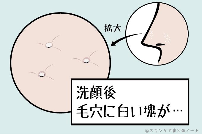 洗顔後に毛穴に白い角栓が…