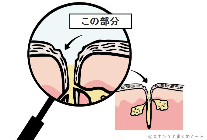 毛穴部分の肌の拡大図